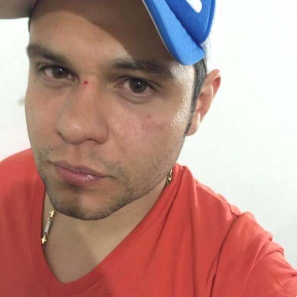 Luifer cuello herido en atraco en Bogotá (4)